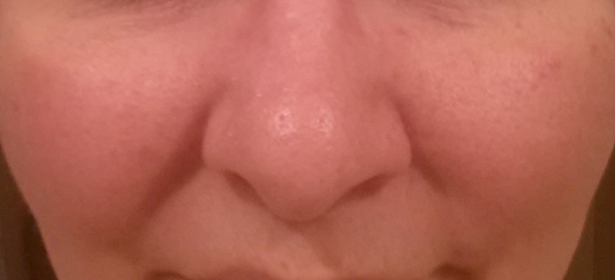 close look at the contact dermatitis around my nose
