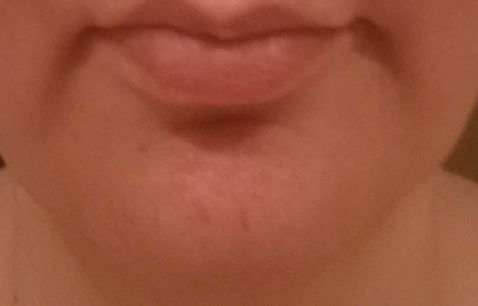 mild case of contact dermatitis around my chin