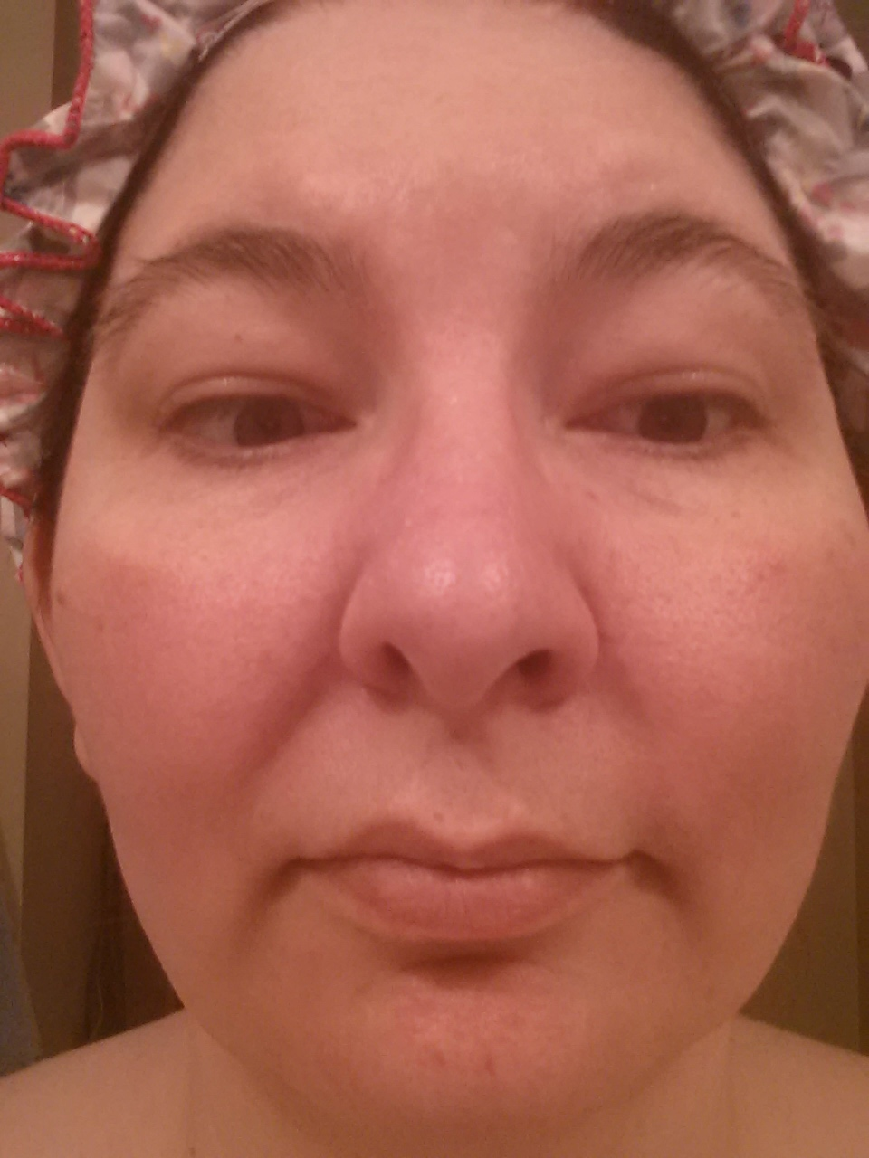 my contact dermatitis